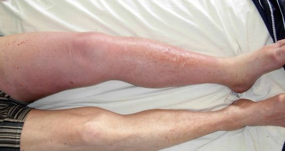 Symptomer Blodpropp
